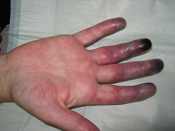 63 blaue zehen blaue finger