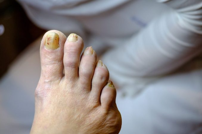 5 Natural Remedies To Get Rid Of Toenail Fungus
