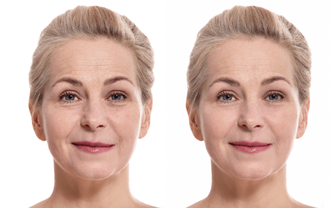 Lifting Firming Cream results