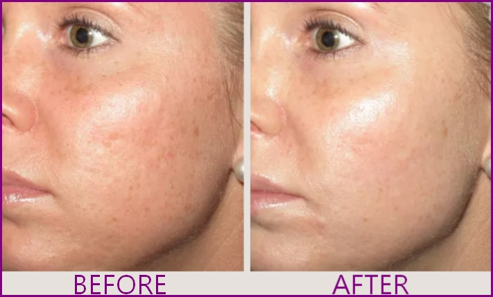 acne marks removal with microneedling