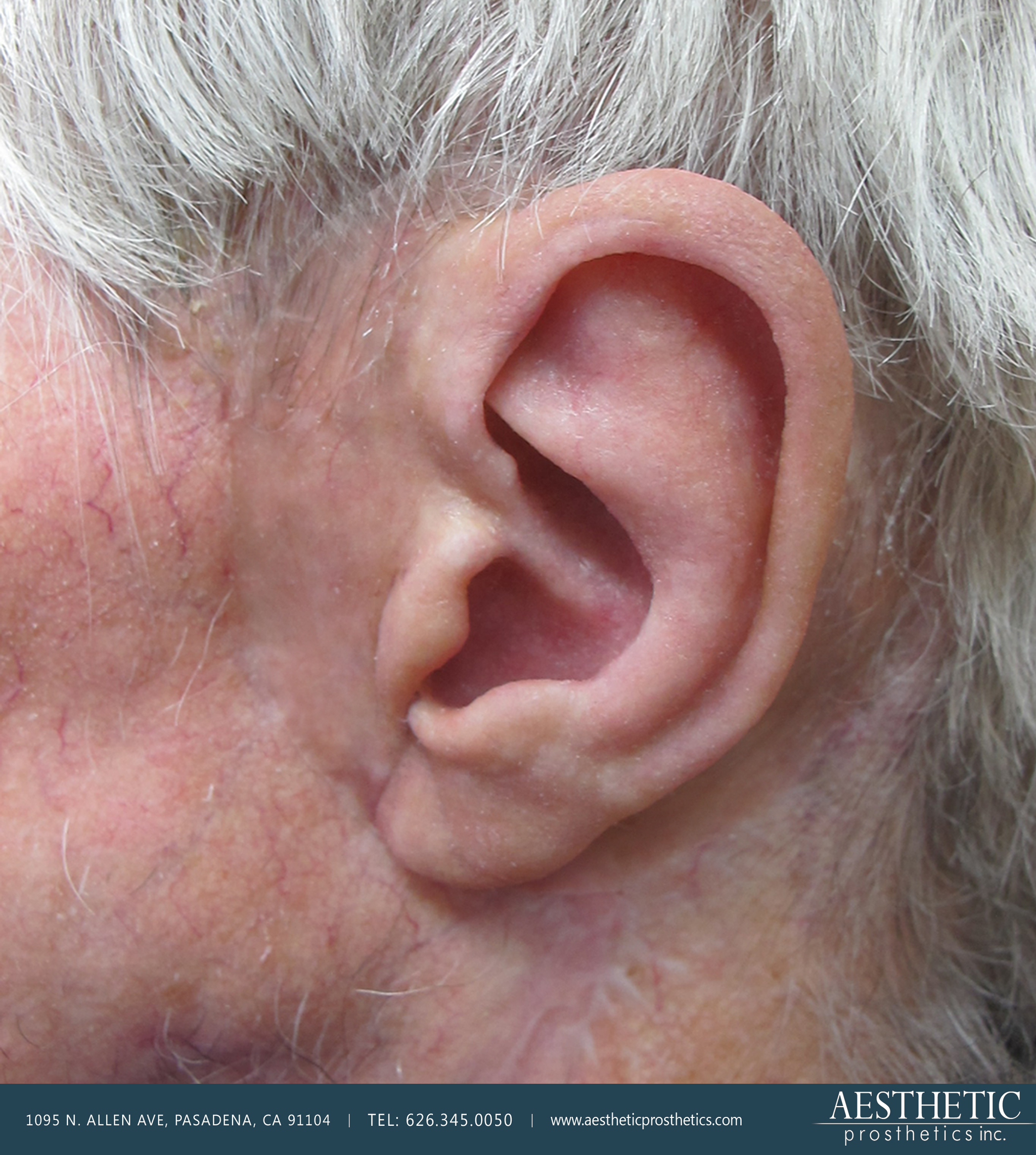 highly realistic prosthetic left ear with surrounding tissue and hair of elderly Caucasian man made by Aesthetic Prosthetics in Pasadena, ca southern california los angeles