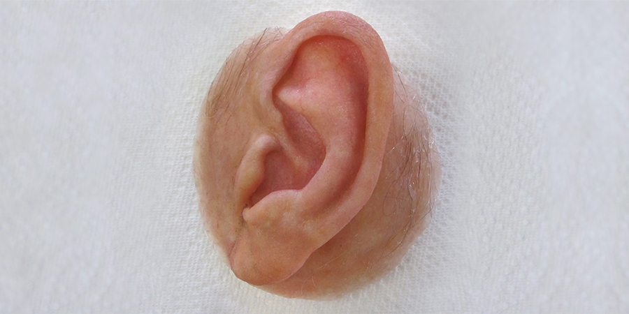highly realistic left prosthetic ear with surrounding tissue and hair of elderly Caucasian man made by Aesthetic Prosthetics in Pasadena, ca southern california los angeles