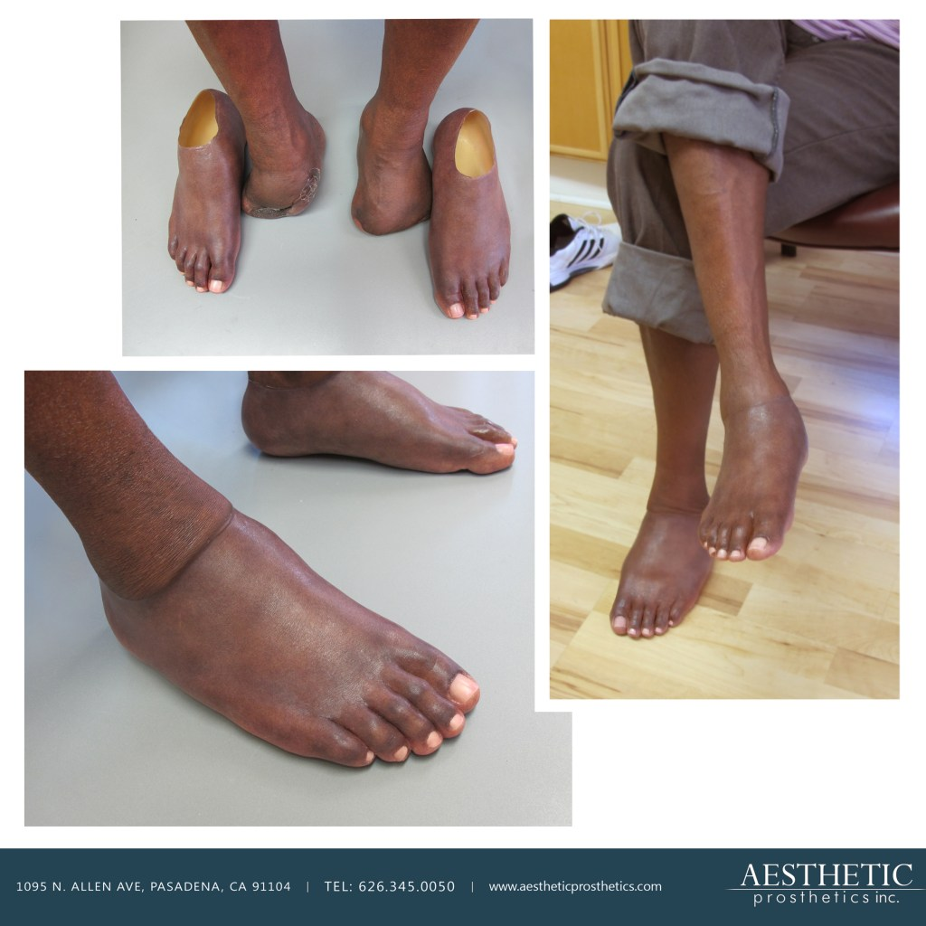 African american man, former NFL player Douglas Hollie wears 2 prosthetic partial feet made by aesthetic prosthetics in pasadena, ca