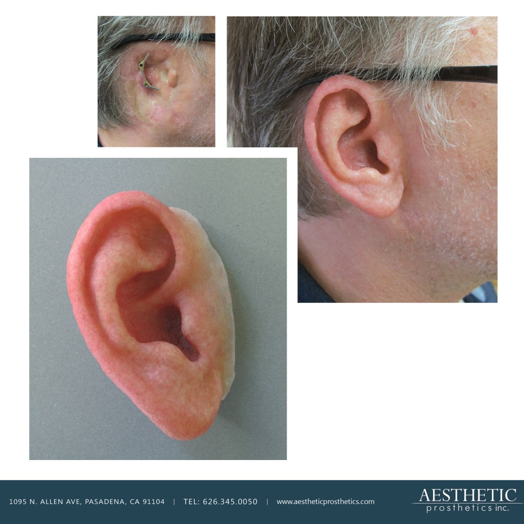 caucasian mean wears bar and clip retained prosthetic ear made by aesthetic prosthetics in pasadena, ca