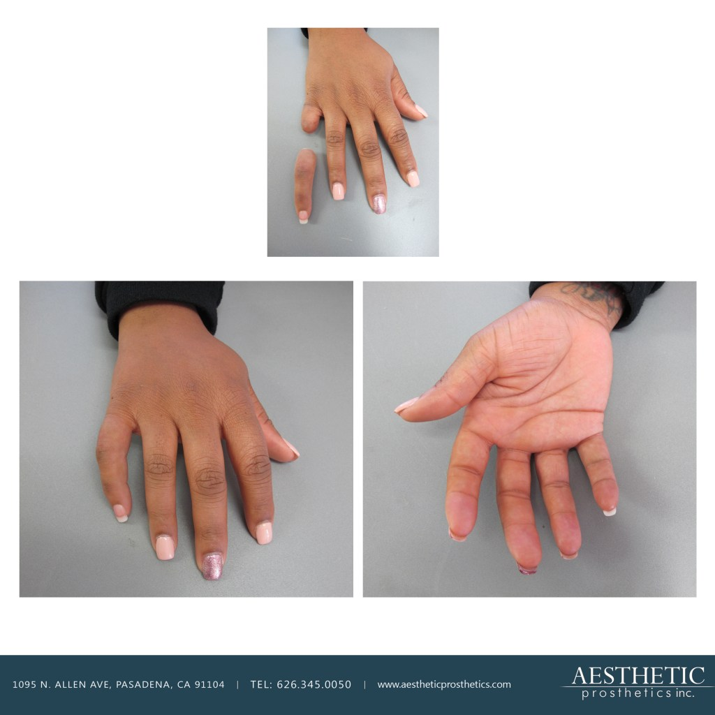 african american woman wears custom silicone right prosthetic pinky made by aesthetic prosthetics in pasadena california