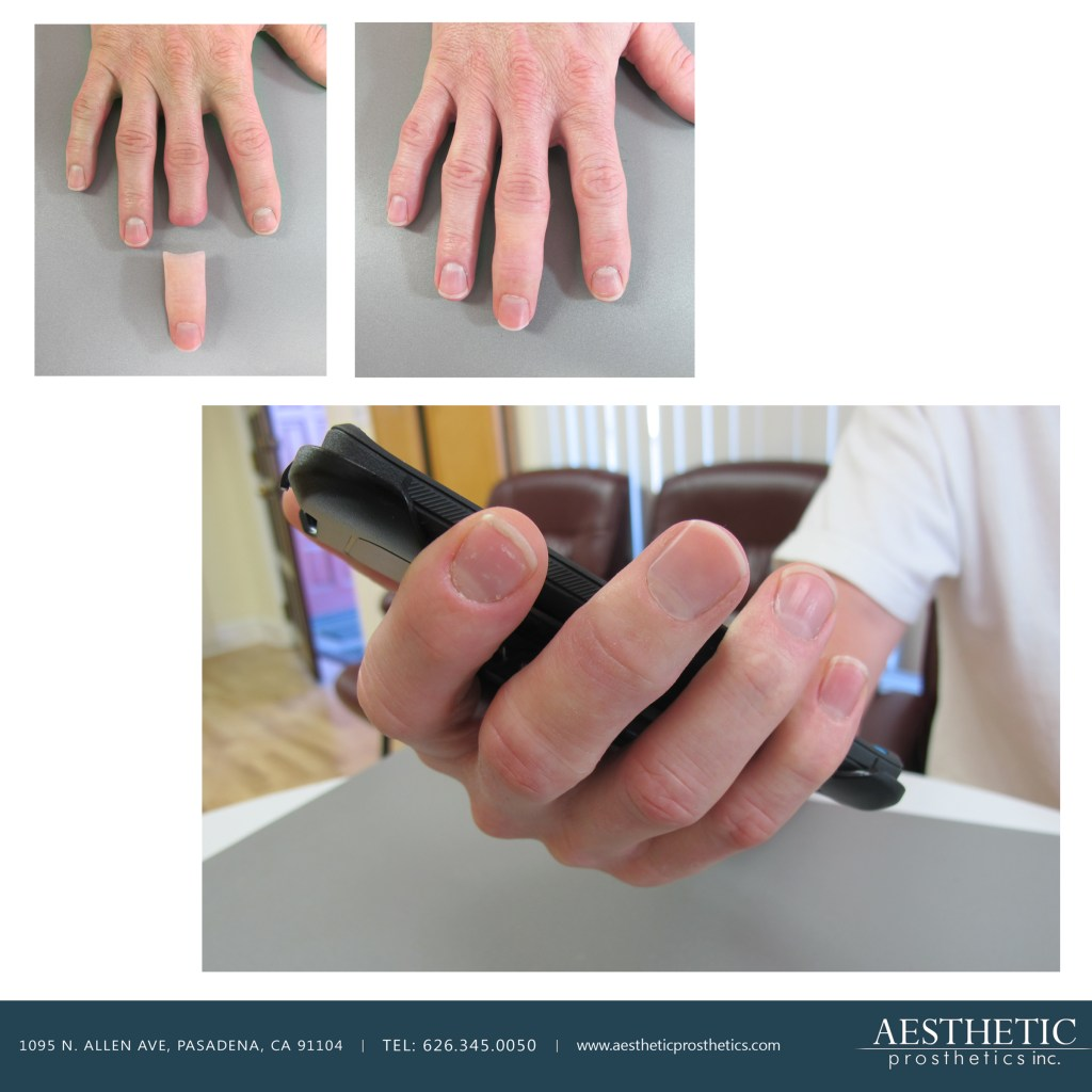 Caucasian man wears realistic silicone finger prosthesis created by aesthetic prosthetics in pasadena los angeles california