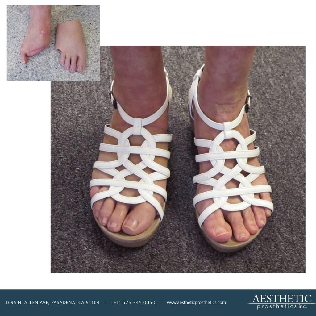 Caucasian woman wears white leather strappy sandals covering her custom realistic real looking life like silicone prosthetic partial foot toes custom made at aesthetic prosthetics in socal southern califorrnia pasadena los angeles upper left shows amputation with prosthesis laying next to it.