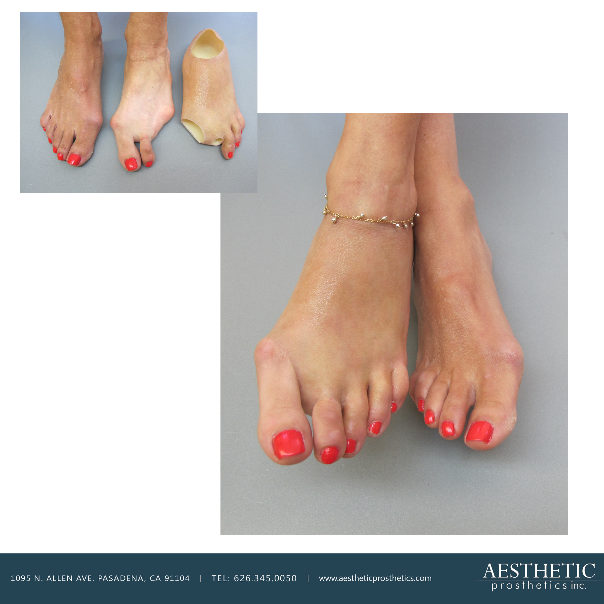 caucasian woman wears realistic silicone prosthetic, prosthesis real hyer realism partial foot realistic toes on her left foot amputation made in Pasadena, Los Angeles, southern califlornia by aesthetic prosthetics anaplastologist