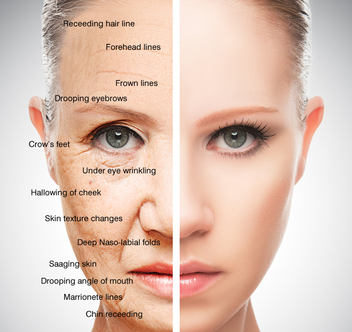 skin assessment diagram draw an orbital for scandium signs of ageing - aevum clinic in blackrock medical centre, cork