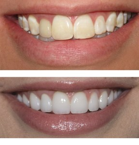 whitener teeth