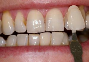 using Cosmetic Dentist