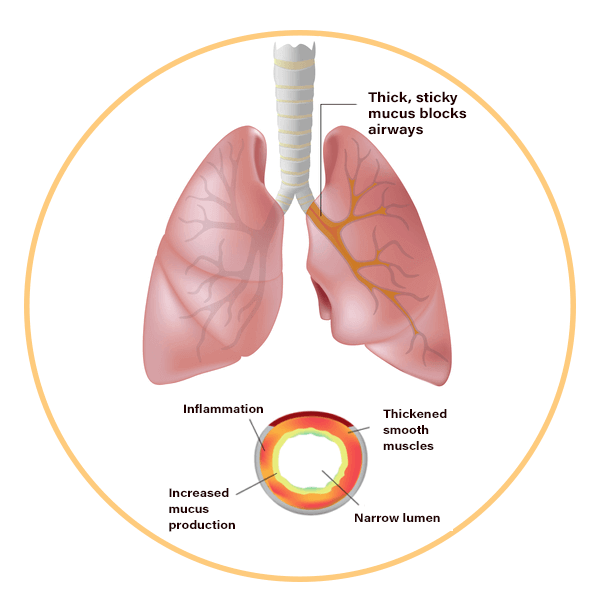 What the Airways of Cystic Fibrosis look like