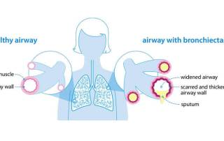 airway with bronchiectasis