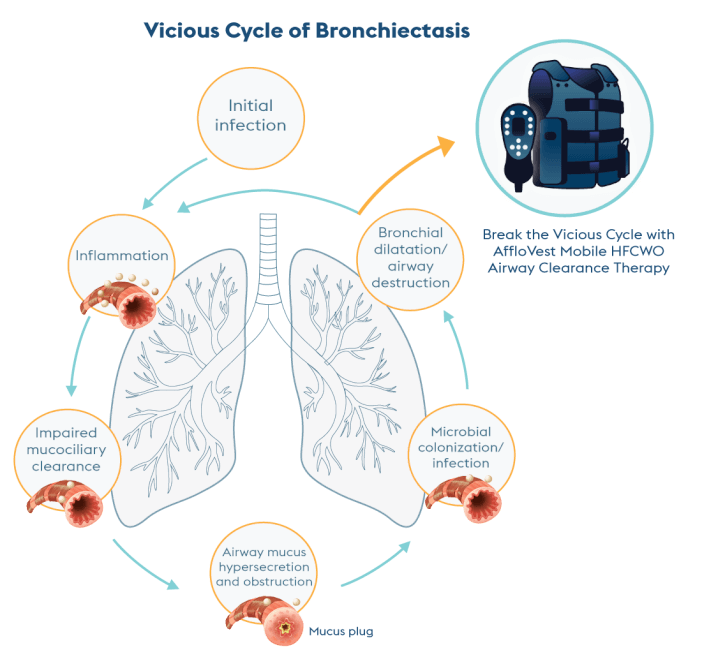 vicious cycle of bronchiectasis