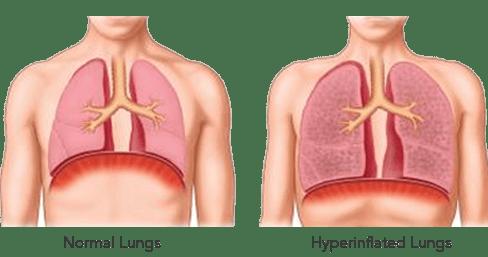 bronchiectasis airways