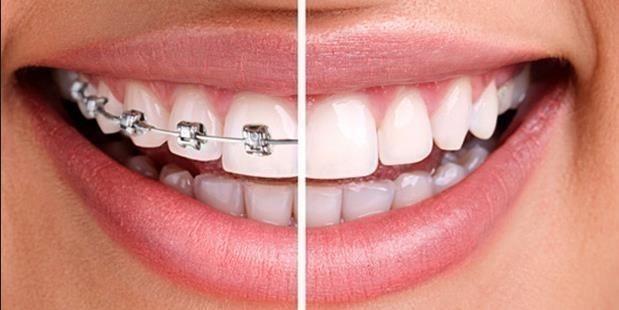 Invisible Teeth Aligner