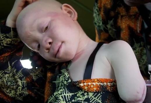 Bambino albino mutilato
