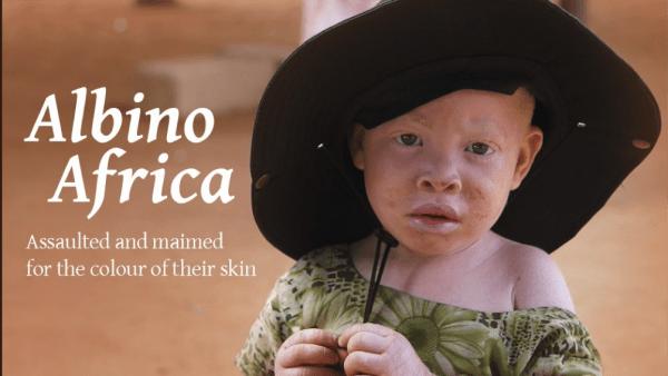 Bimbo albino