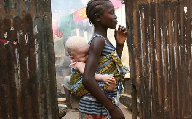 young sleeping albino girl in sierra leone, africa, on the back of her sister. Image shot 03/2009. Exact date unknown.