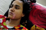 Shocking Images Of A Young Bangladeshi Girl Attacked With Acid By Her In-Laws