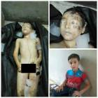 Turkish Officials Kidnapping Syrian Children and Stealing Their Organs to Treat Patients in Europe