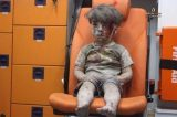 The heartbreaking Image Of an Injured 5 Year old Syrian boy