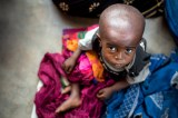 400,000 children in Greater Kasai at risk of severe acute malnutrition, UNICEF warns