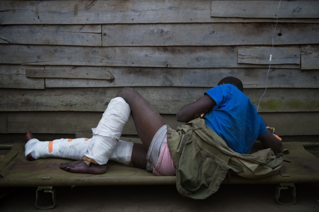 An injured man, alleged by the Congolese army to be an M23 fighter, lies on a stretcher in the village of Rusayo during a press visit, some 13km from Goma in the east of the Democratic Republic of the Congo on July 16, 2013. Combat continued today between M23 rebels and the national army - who are making ground against the rebels for the first time in over a year. [PHIL MOORE]
