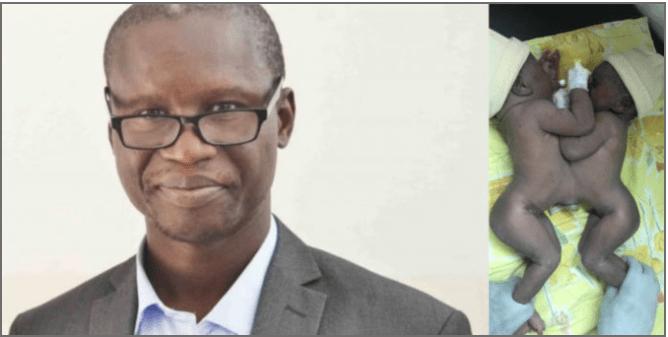 Le  chirugien Gabriel Ngom et les soeurs siamoises opérées au Sénégal