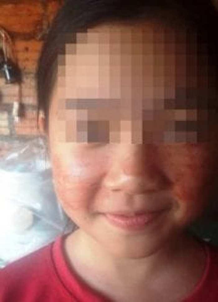 Vietnam: Le mystère d'une fille de 11 ans qui transpire du sang (photo)