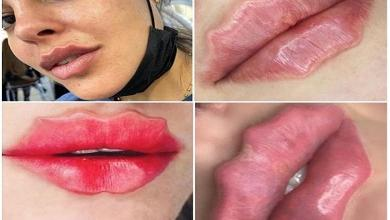 Photo of Can it get any crazier? Octopus lips conquer Instagram