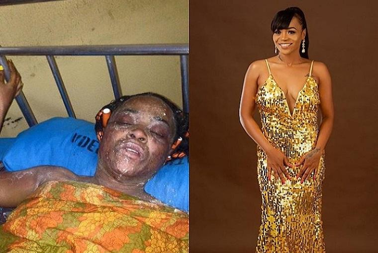 From burn to beauty: Amazing change of gas explosion victimFrom burn to beauty: Amazing change of gas explosion victim