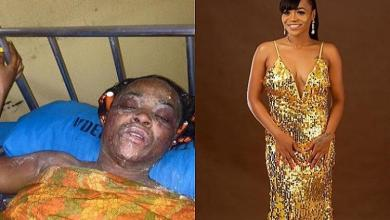 Photo of From burn to beauty: Amazing change of gas explosion victim