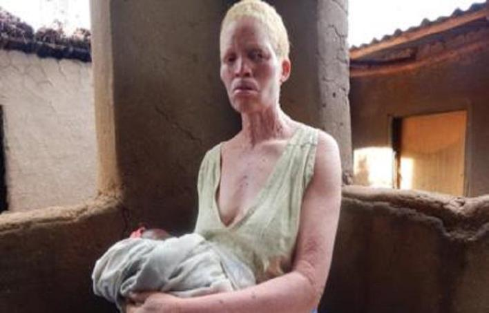 10 wicked misconceptions towards Albino people in Africa