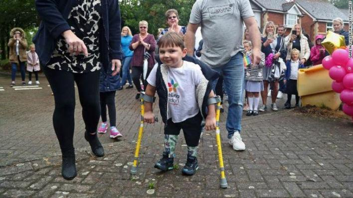 Parents abused baby so much that he lost both legs, 5 years later he raises £1M
