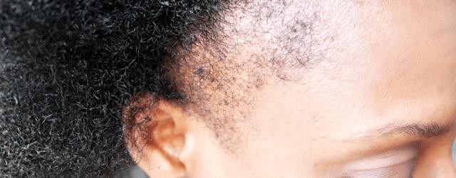 alopecie-post-partum-apres-grossesse-astuces-repousses-cheveux-crepus-pousse-afrolifedechacha