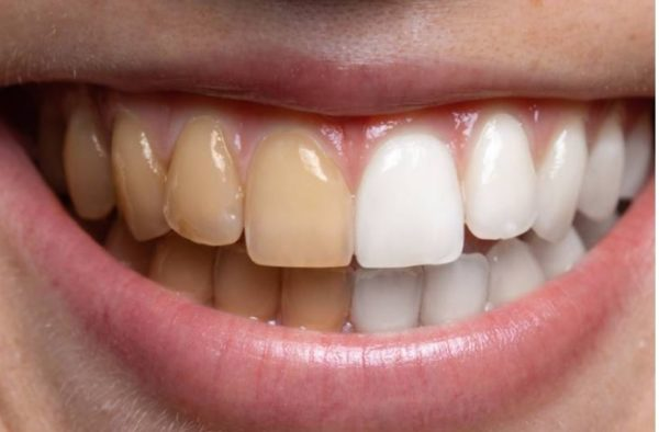 5 common foods that stain your teeth