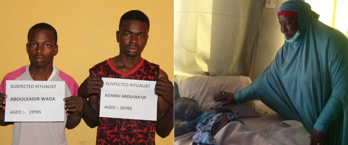 VIDEO: 6-year-old Girl Whose Vagina Was Cut Off By Ritualists In Bauchi Is Alive