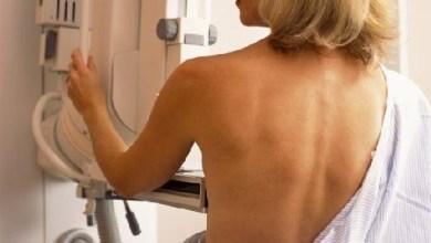 εξετάσεις μαστού