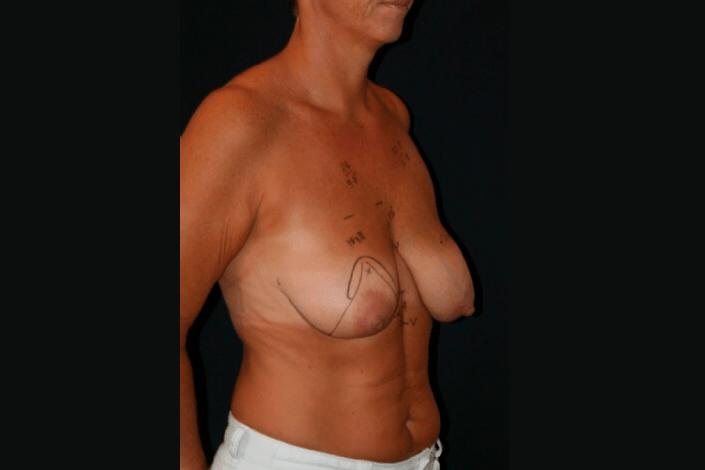 Før brystløft billede