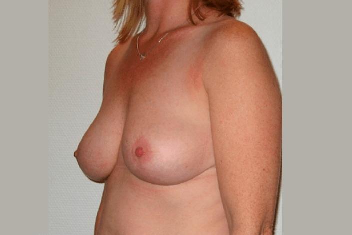 Efter brystreduktion billede