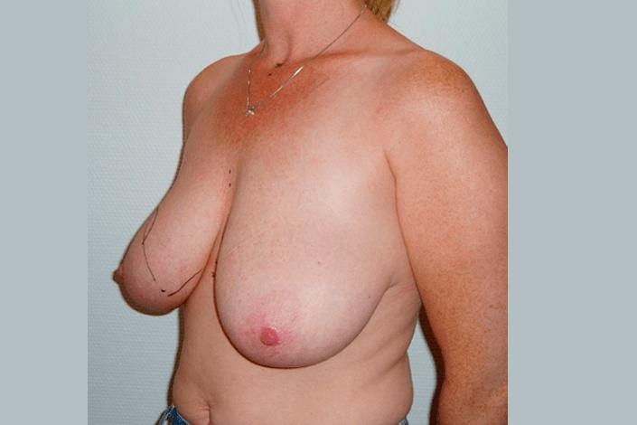 Brystreduktion før billede