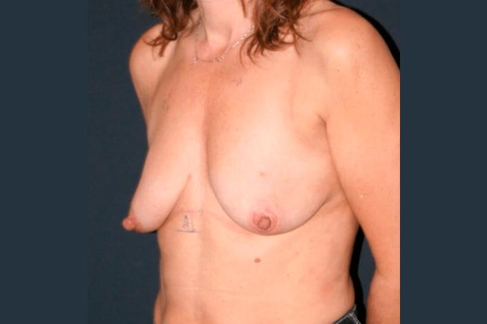 Før brystforstørrelse billede