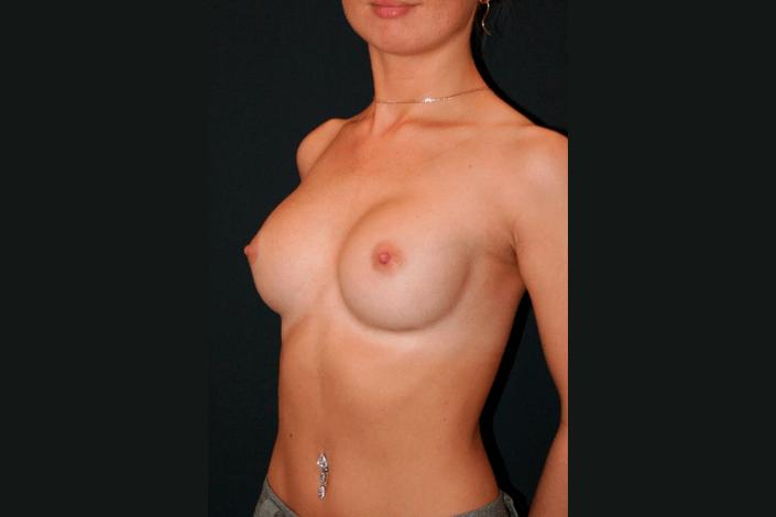 Brystforstørrelse efter billede
