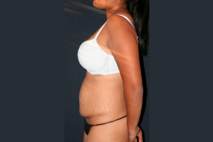 Før maveplastik billede
