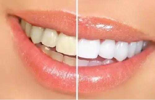 Pastă de dinţi AP-24® cu Fluor pentru înălbirea dinţilor