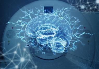 Resultado de imagen de Imágenes del cerebro refutar una teoría de los años 60 sobre el dominio del lenguaje