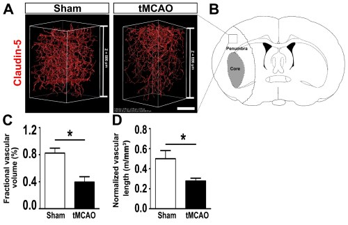 small resolution of figure 6 visualization and quantification of the vasculature in the penumbra of tmcao and sham mouse brain a representative 3d image of the vasculature