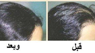 Photo of وصفة مغربية ضد تساقط الشعر