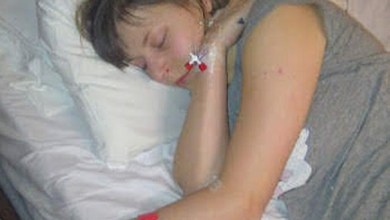 Photo of توقع الأطباء وفاتها في غضون شهر.. فعاشت 8 سنوات!